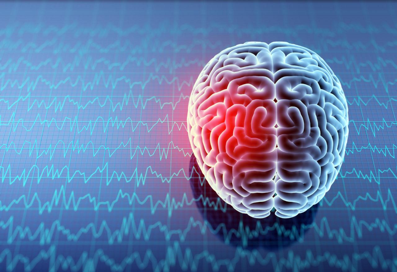 niagara neurofeedback
